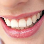 Teeth Whitening Improves your smile and confidence