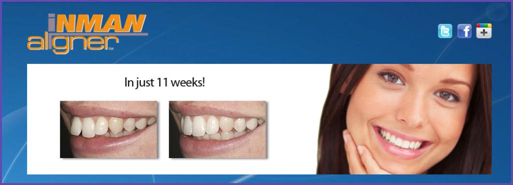 InmanAligner dental brace by Bridge Dental Marlow