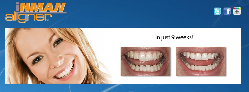 The InmanAligner-recommended by Bridge Dental Marlow