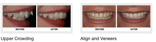 crowding & Veneers