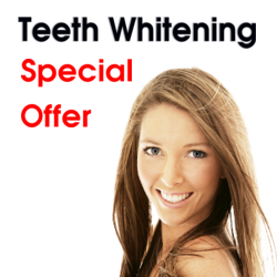 Teeth Whitening Special Offer Bridge Dental Marlow