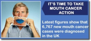 Mouth_Cancer_Awareness_Support_at_Bridge_Dental_Marlow_Bucks_