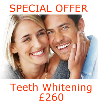 Latest Teeth Whitening Special Offer at Bridge Dental in Marlow