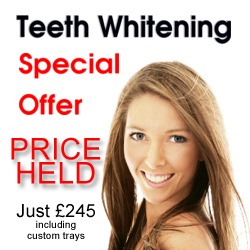 Wonderful Teeth Whitening Special Offer at Bridge Dental in Marlow